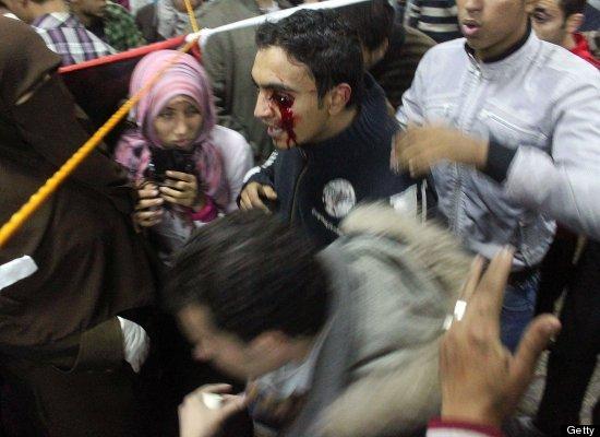 بالصور // The events of Tahrir Square on 19.20, 21, 22.23, 24 November أحداث ميدان التحرير يوم  19، 20 ، 21 ، 22 ، 23 ،24نوفمبر Slide_198125_486848_large