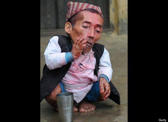Hombre De Nepal Dice Ser El Hombre M S Peque O Del Mundo