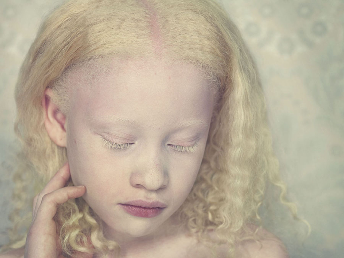 african albinos There has been a recent spate of attacks on albinos in tanzania,  the washington post newsroom was not involved in the creation of this content.