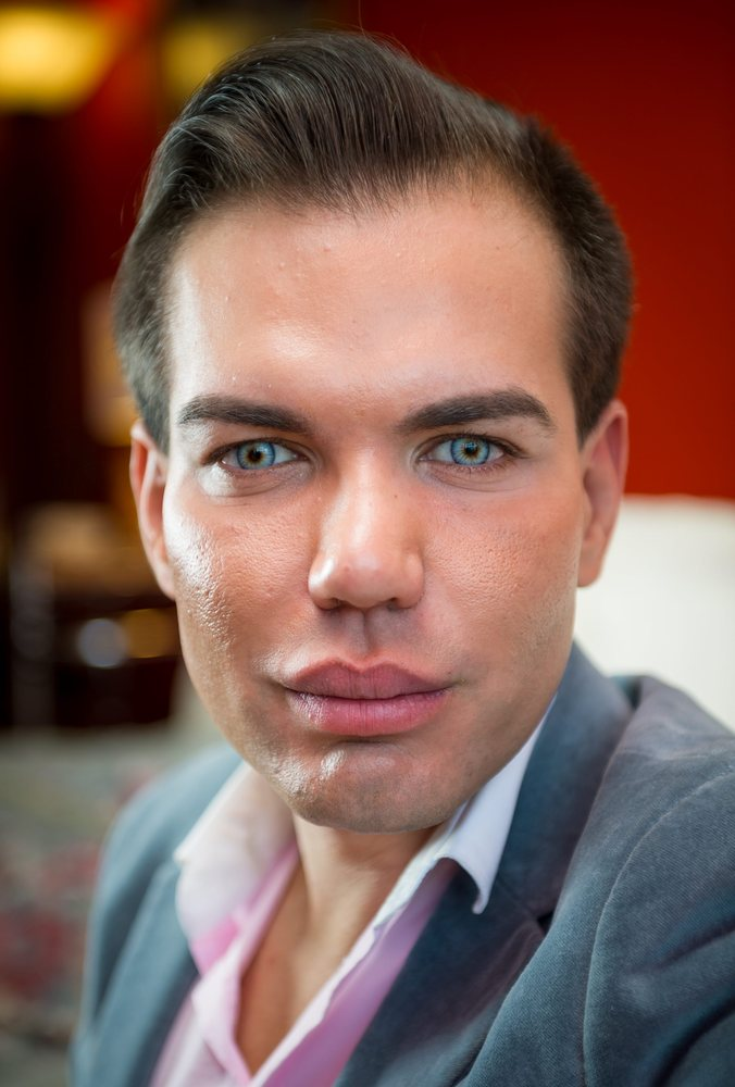 Man Spends 163 100 000 On Plastic Surgery To Look Like Ken