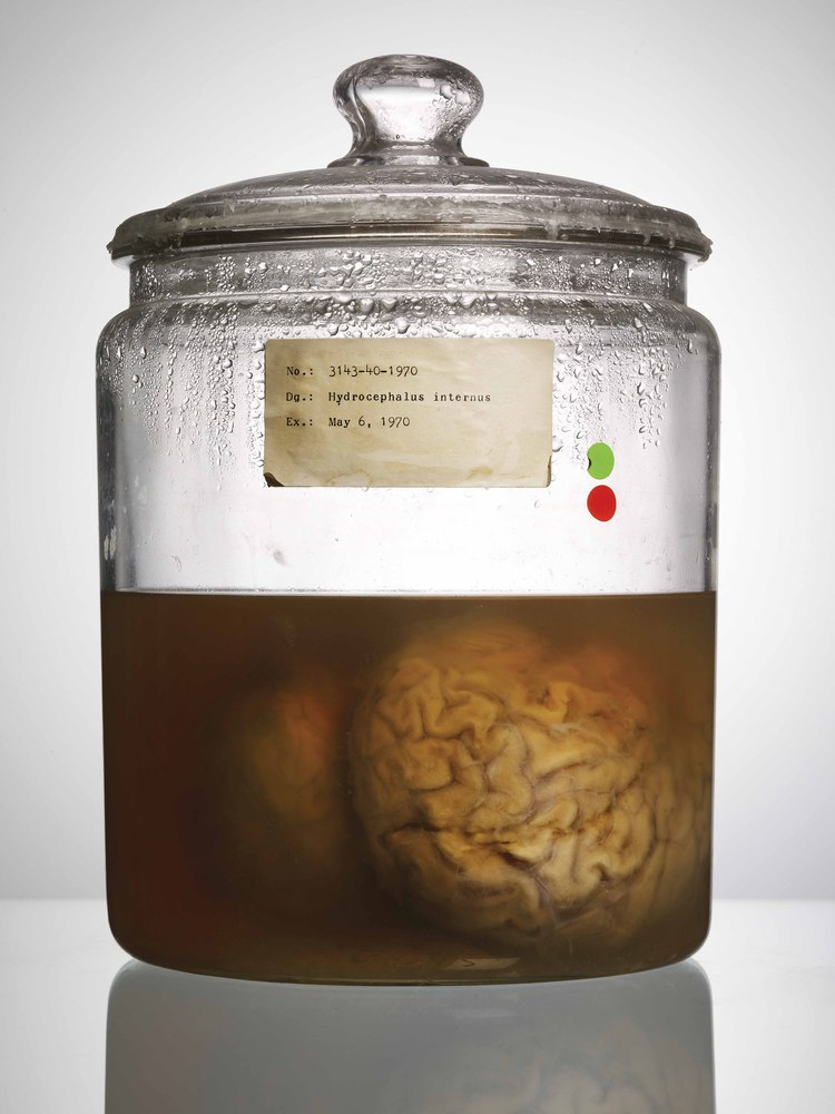 tten Brains From A Mental Hospital Are Oddly F