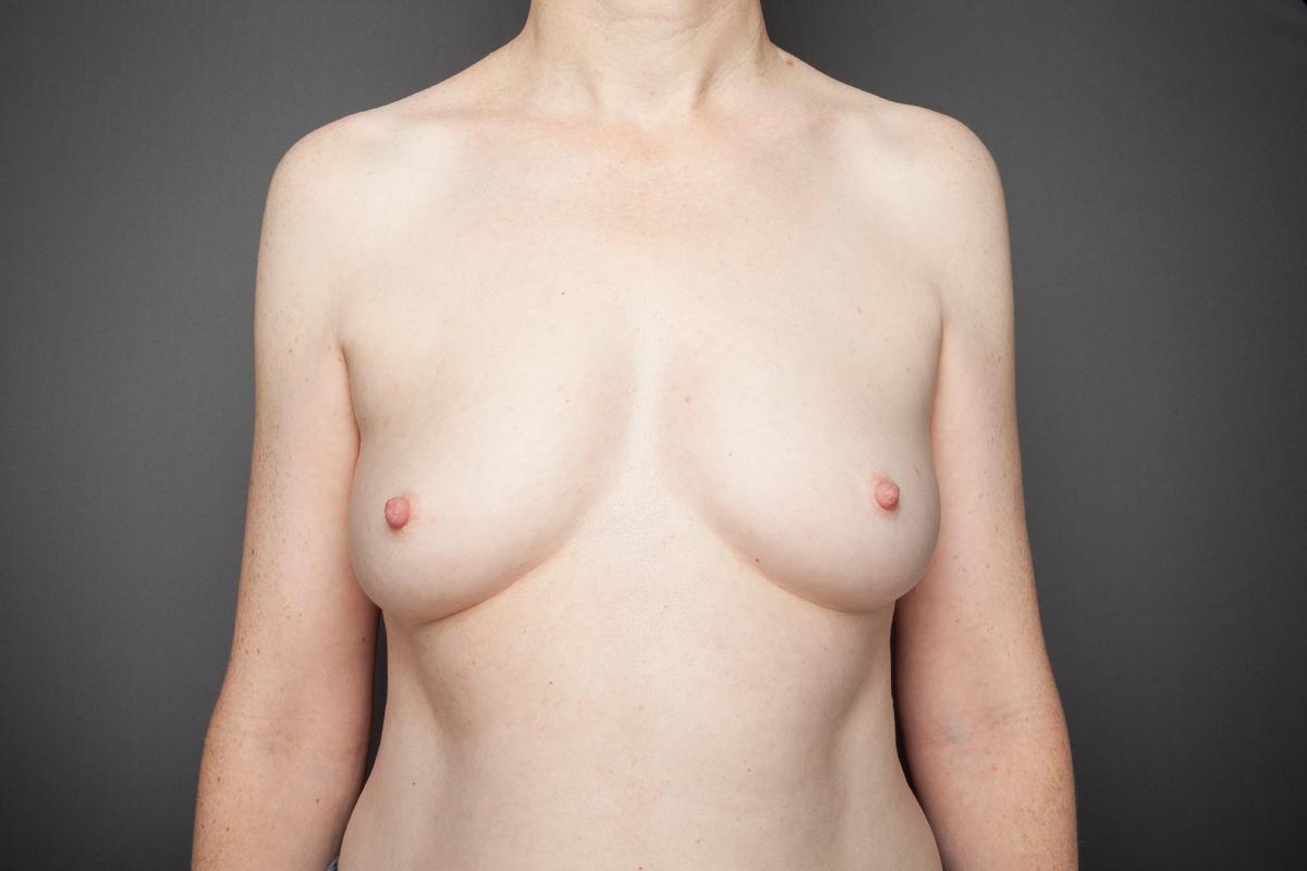 Wie ohne Operation, die Elastizität der Brust zurückzugeben