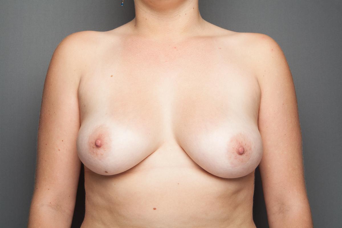 Birnenform Busen - Nackte Frauen