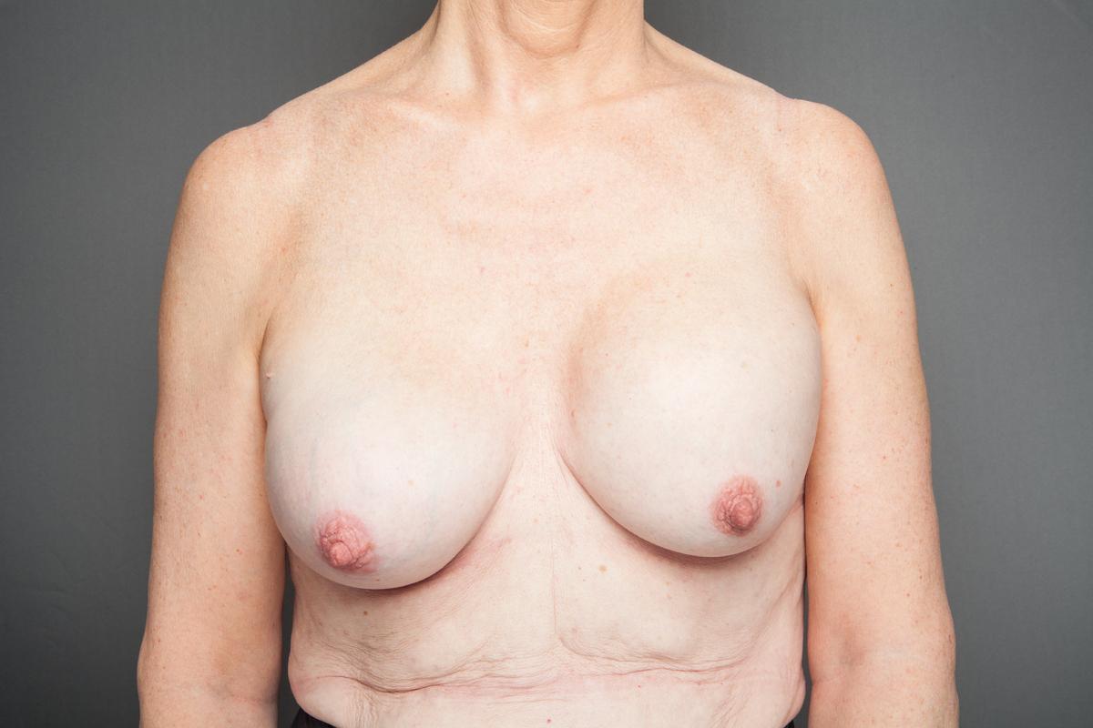 Große nackte Frauen der Brüste