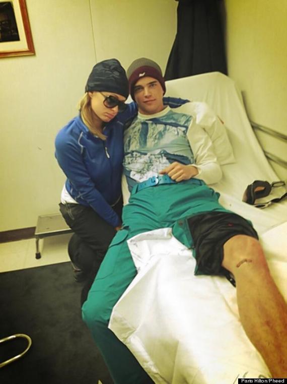paris hilton poses boyfriend bleeds