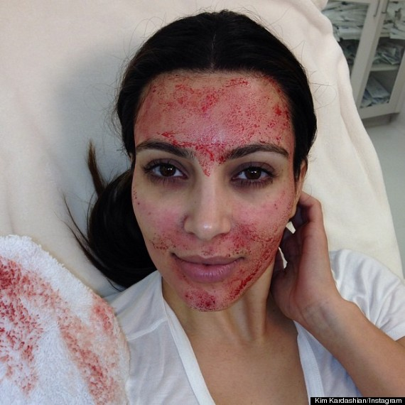 Kim Kardashian Cosmetic Surgery: Reality Star Shows Off Bloody Results