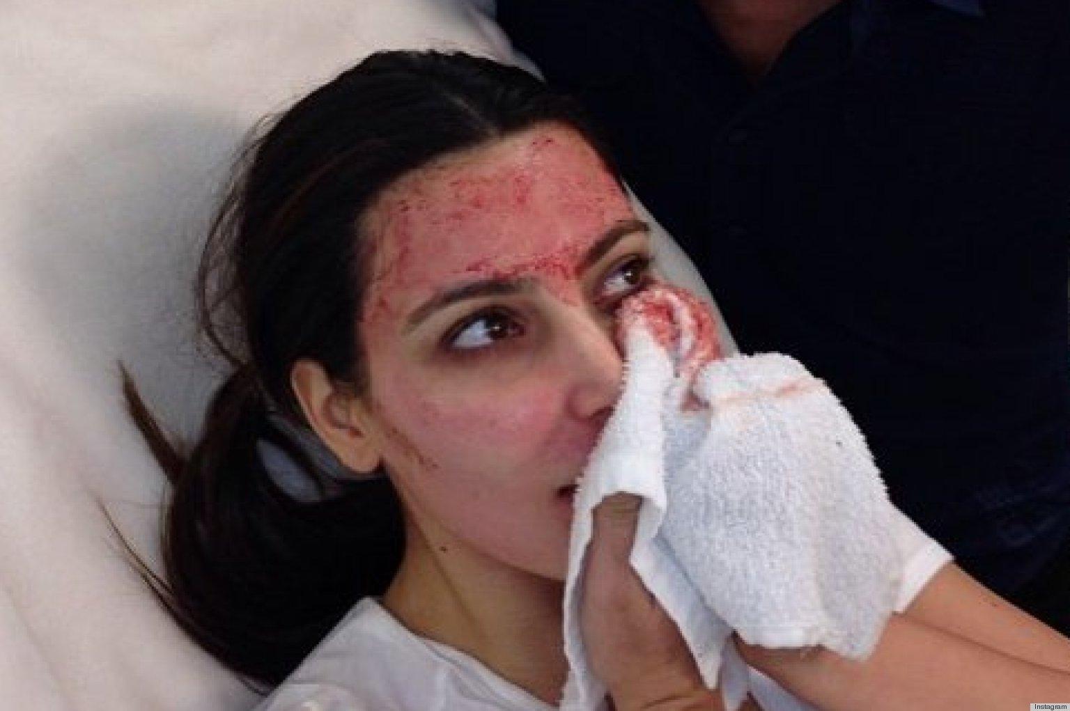 Kim Kardashian Blood Facial Facebook