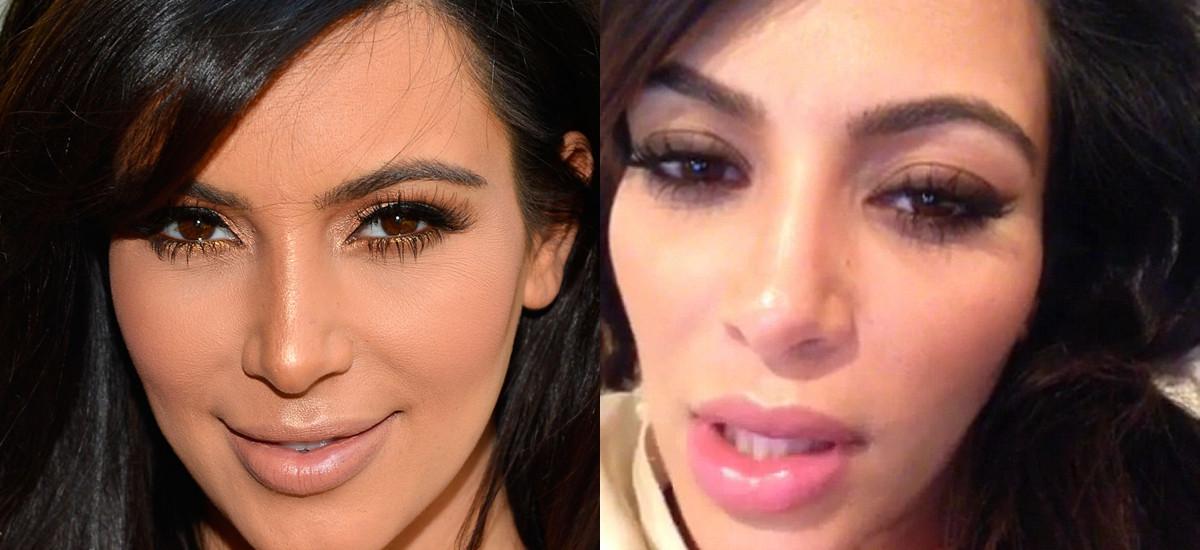 kimkardashianplasticsurgery