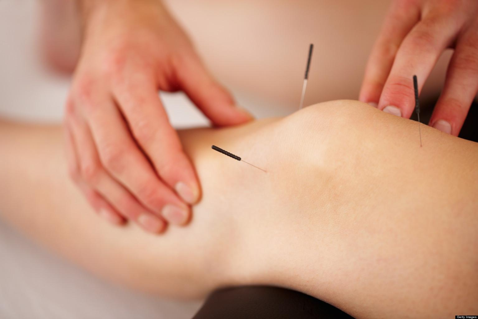 acupuncturist clinic