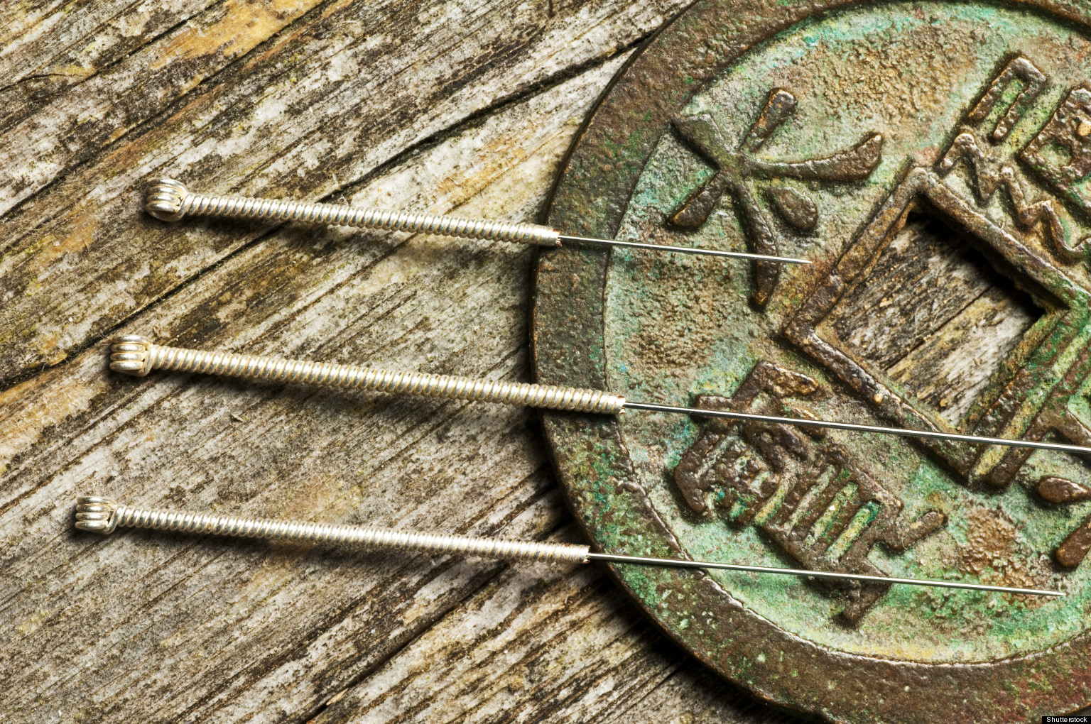 Good news, acupuncture fans: It really does help relieve stress. And now, a new study is giving a closer look at why. The new study explores the biological mechanisms involved in acupuncture's stress-relieving abilities, something science has yet...