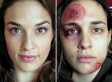 'One Photo A Day' Serbian Domestic Abuse Video Goes Viral