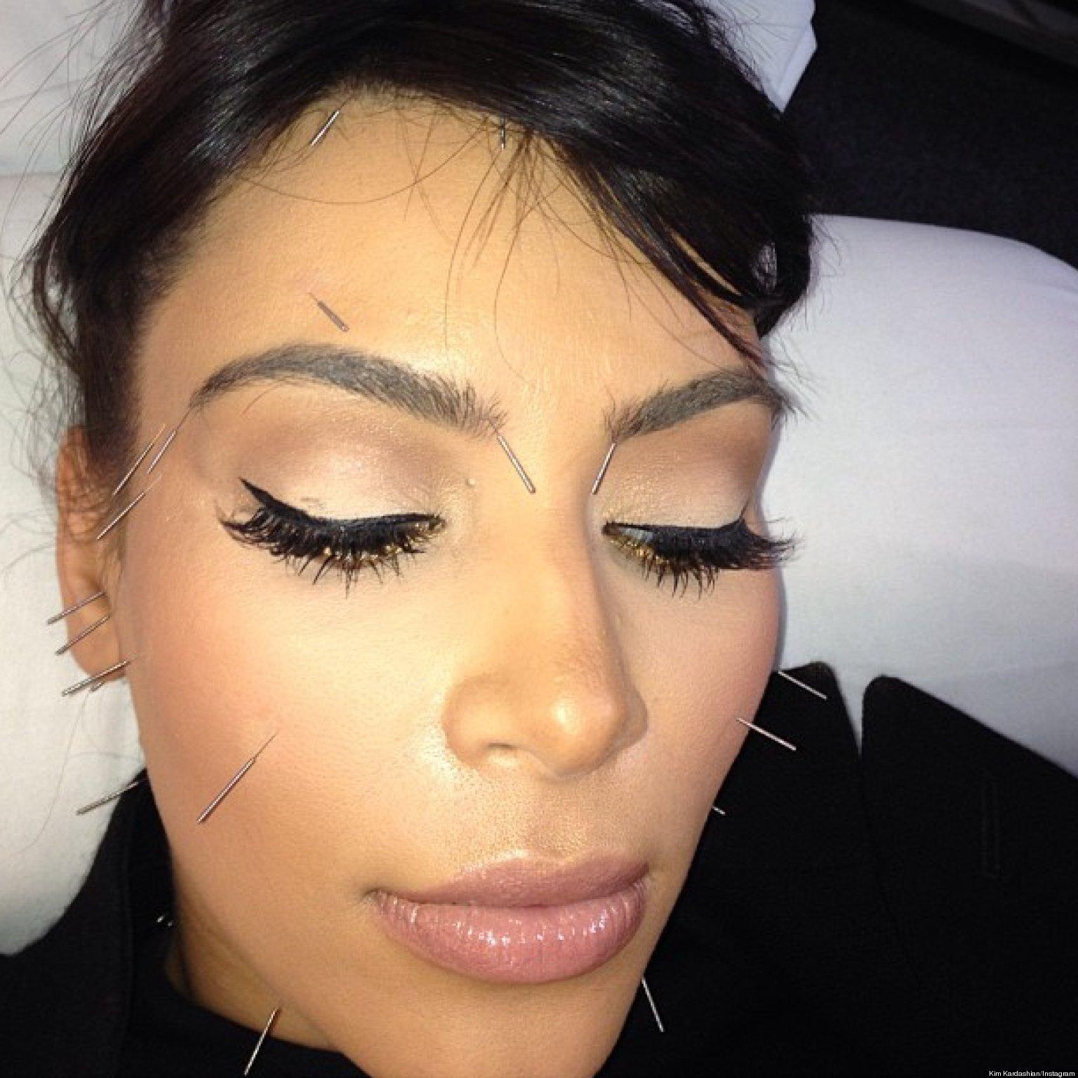 Kim Kardashian Instagrams Acupuncture Face (PHOTO)