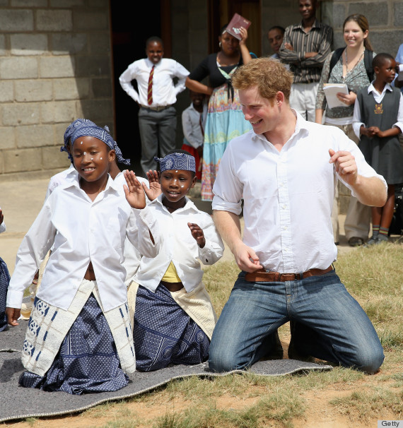 prince harry balding
