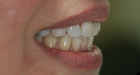 teeth after