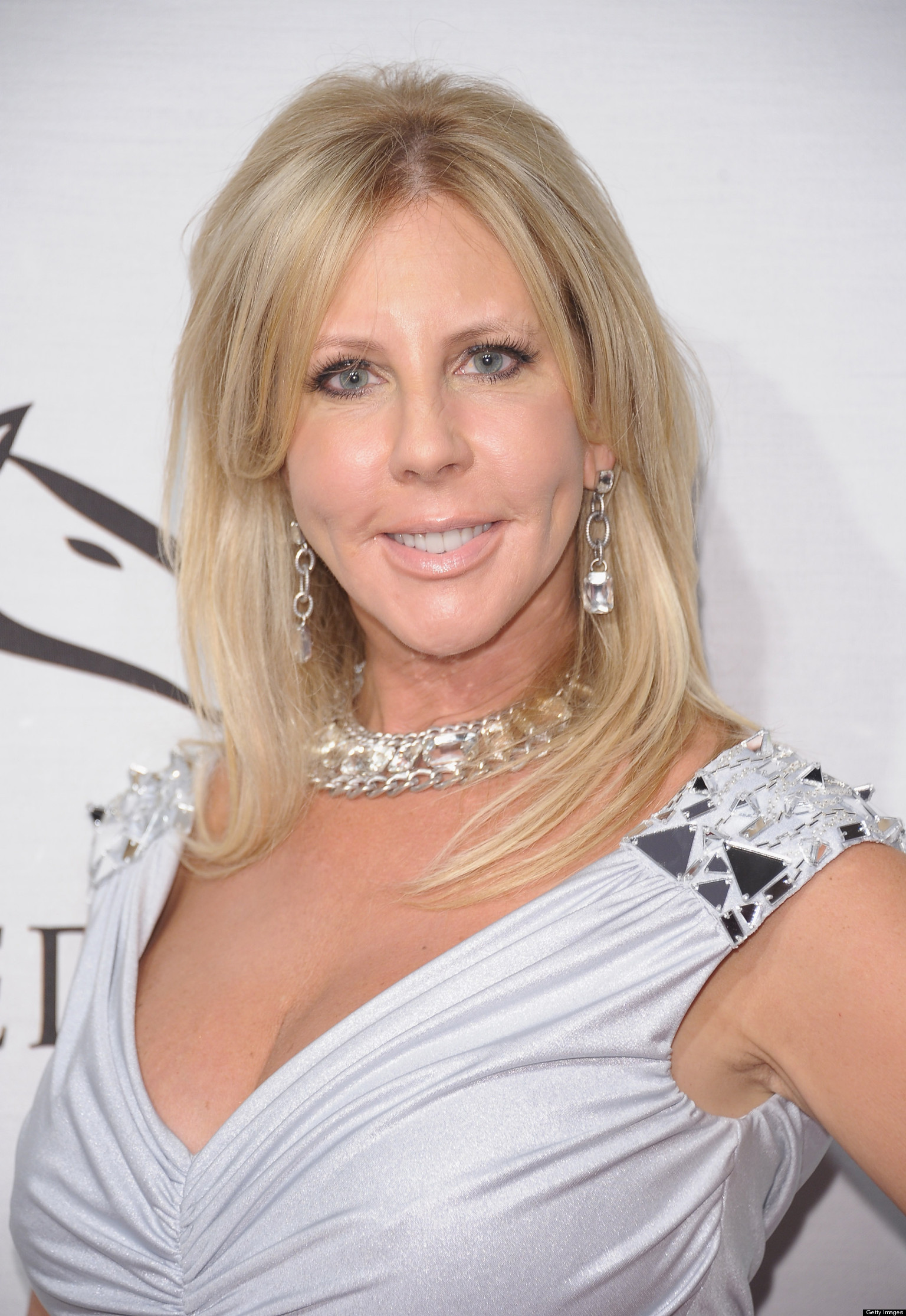 Orange County Teen Model: Vicki Gunvalson Plastic Surgery: 'Real Housewives' Star