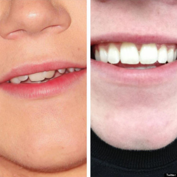 niall horan braces