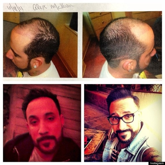 aj mclean hair plugs