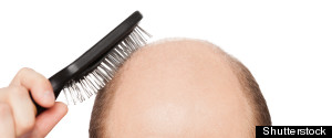 BALDNESS HEART DISEASE