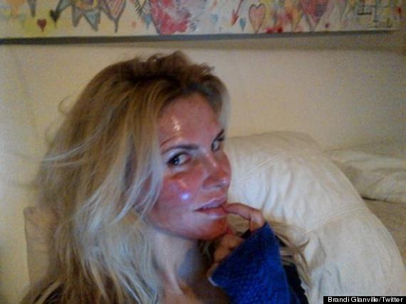 brandi glanville burned face