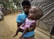 Girl's Head Swells Like A Balloon: Runa Begum, Of India, Born With Hydrocephalus (PHOTOS)
