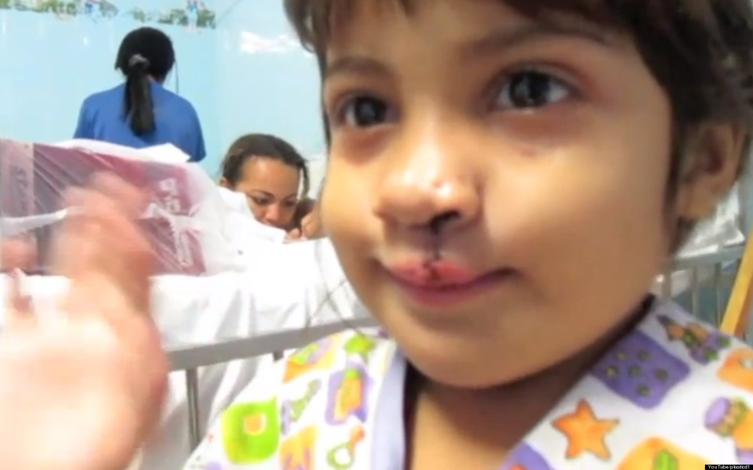 little girl sees herself for the first time after cleft lip surgery  the internet smiles  video