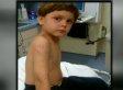 Joey Welch, Florida Child, Survives Gator Attack (VIDEO)