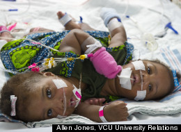 PHOTOS: Conjoined Twins Undergo First-Of-Its-Kind Surgery