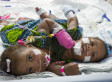 Conjoined Twins A'zhari & A'zhiah Jones Separated In Rare 'Phased' Surgery (PHOTOS, VIDEO)