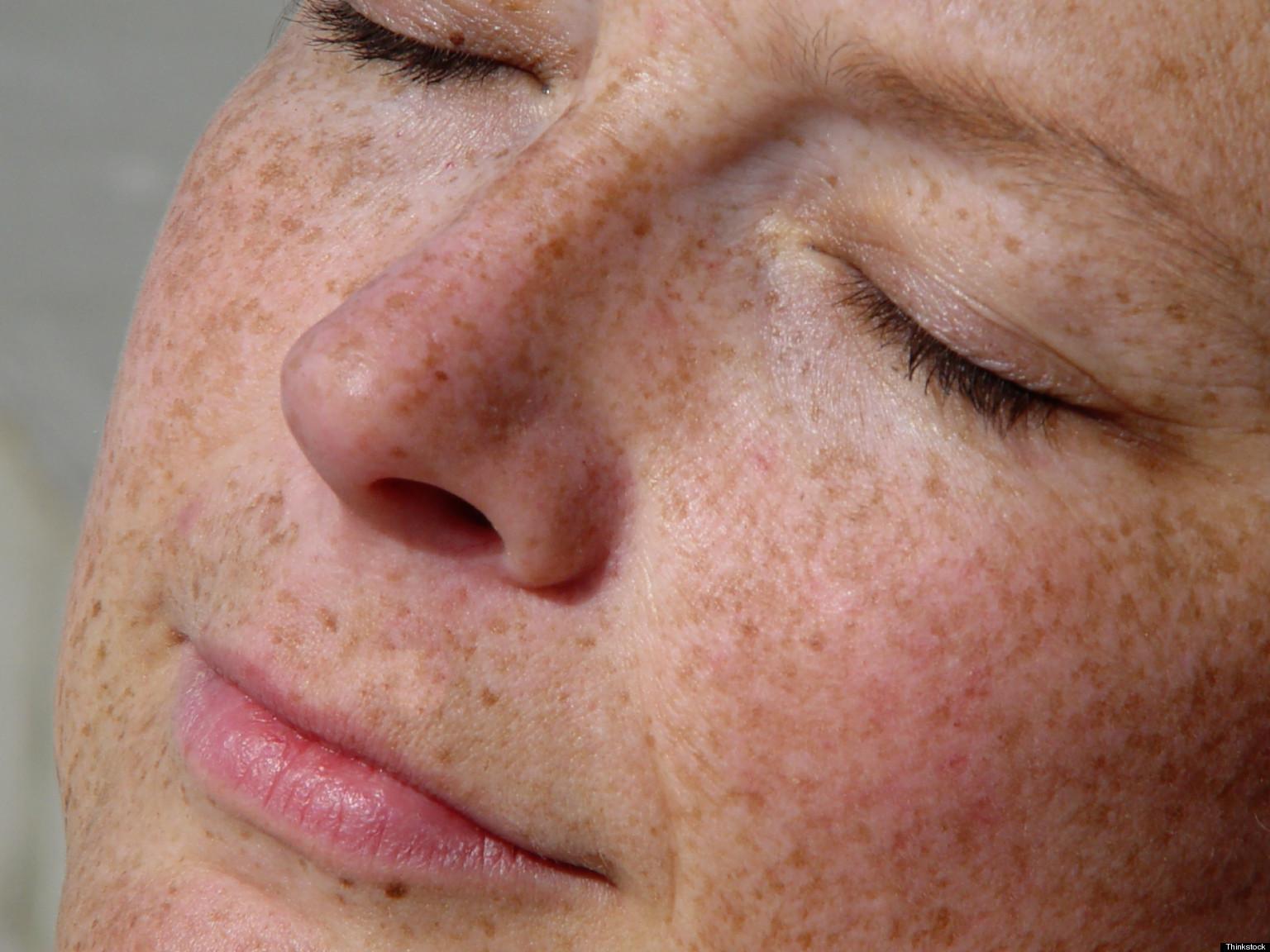 Воздействие причину фотостарения кожи подразделяют
