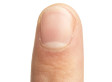 7 Things Your Nails Can Tell You About Your Health