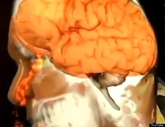 man with leaking brain