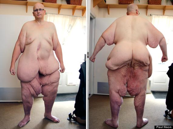 paul mason  10 Fattest People In The World