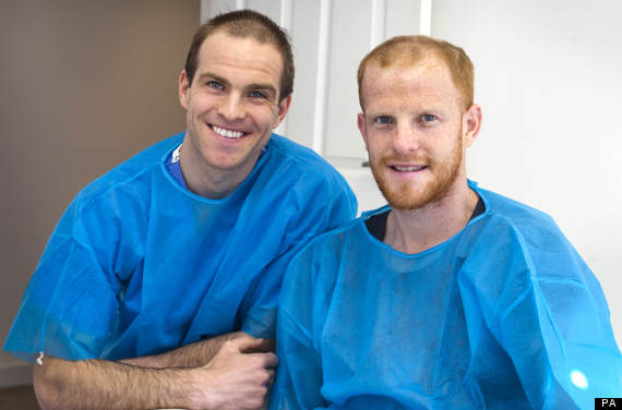 bald brothers hair transplant