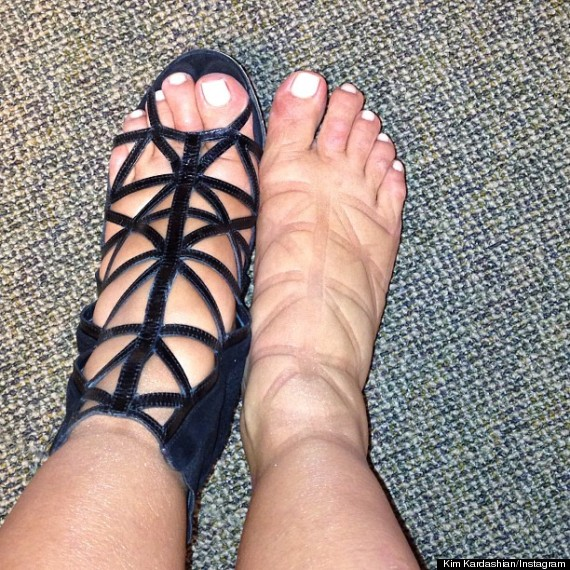 Kim Kardashian Sports Painful Swollen Feet As She Steps ...