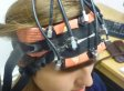 Math Skills Improved By Electric Shocks To Brain, Study Suggests