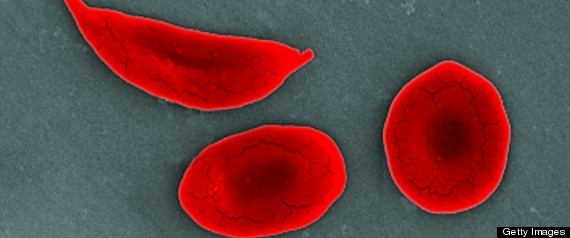 SICKLE CELL TREATMENT