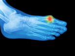 Bunions Hereditary