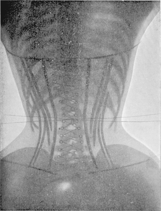 corset pictures