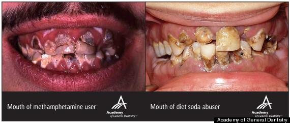diet soda teeth