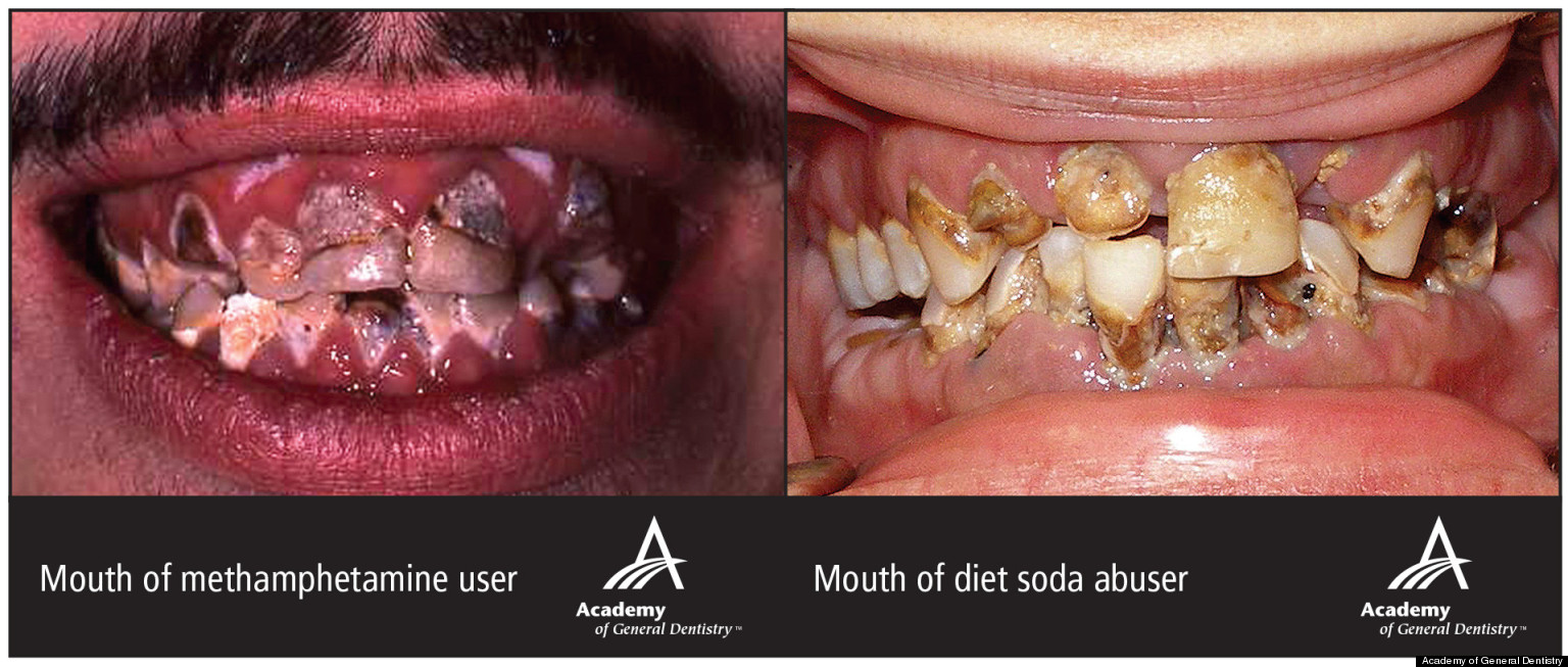 Diet Soda's Effect On Teeth Will Give You Nightmares