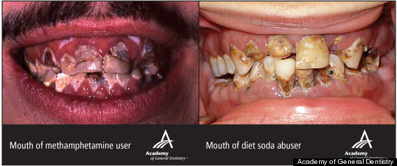 DIET-SODA-TEETH