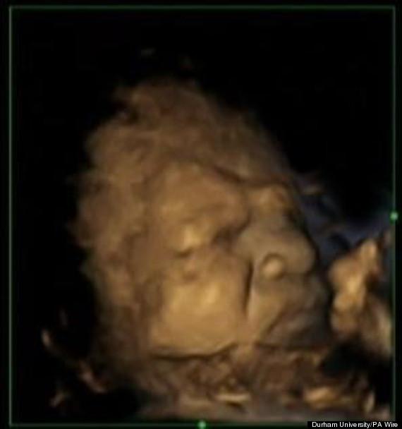 babies womb grimace