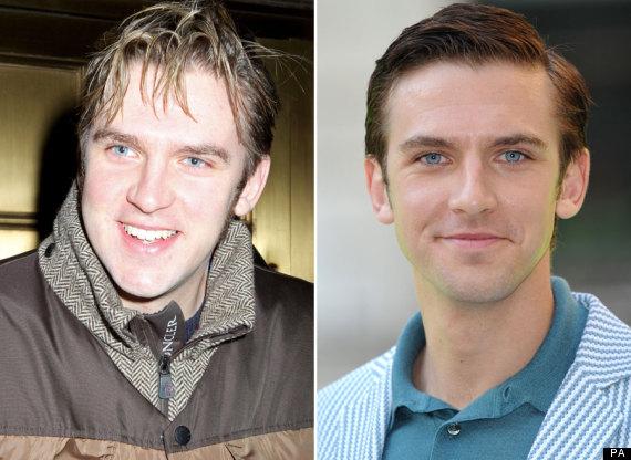 Downton Abbey's Dan Stevens Reveals Two Stone Weight Loss ...