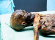 Otzi The Iceman Suffered Head Blow Before Death, Mummy's Brain Tissue Shows