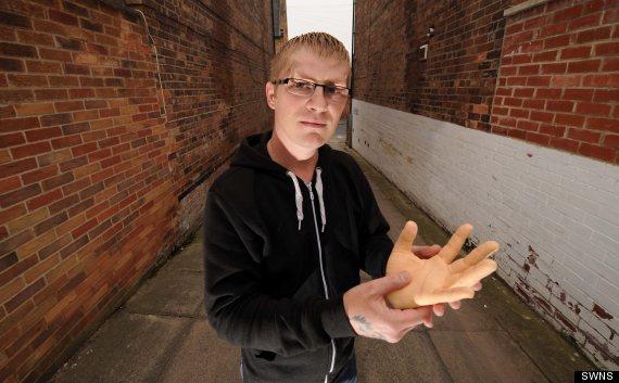 severed hand prank