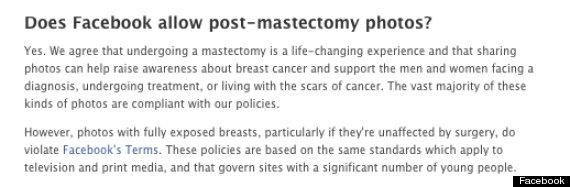 postmastectomy