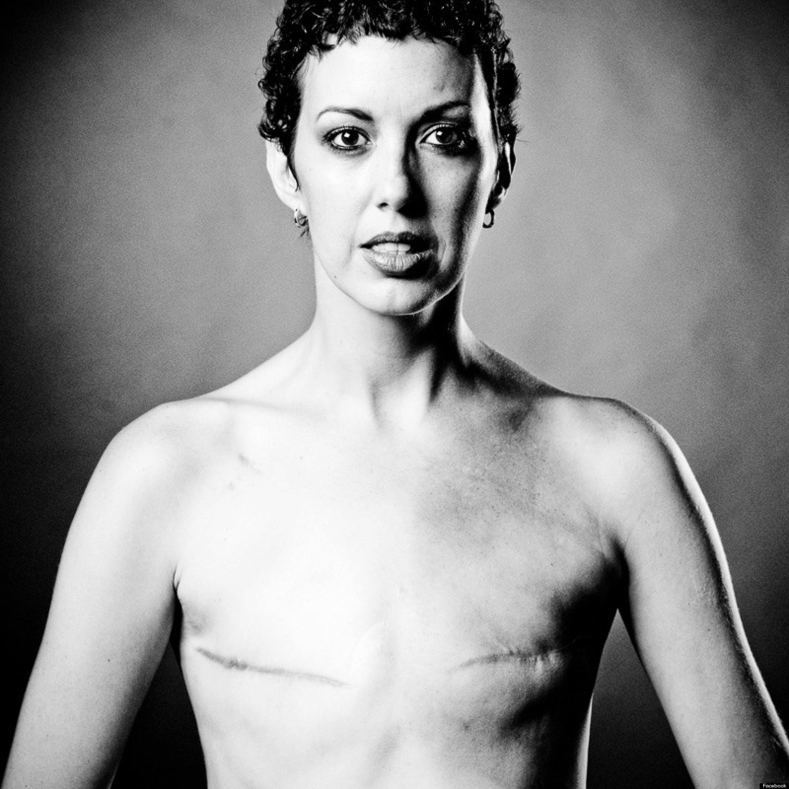 Фото отрезанная грудь 7 фотография