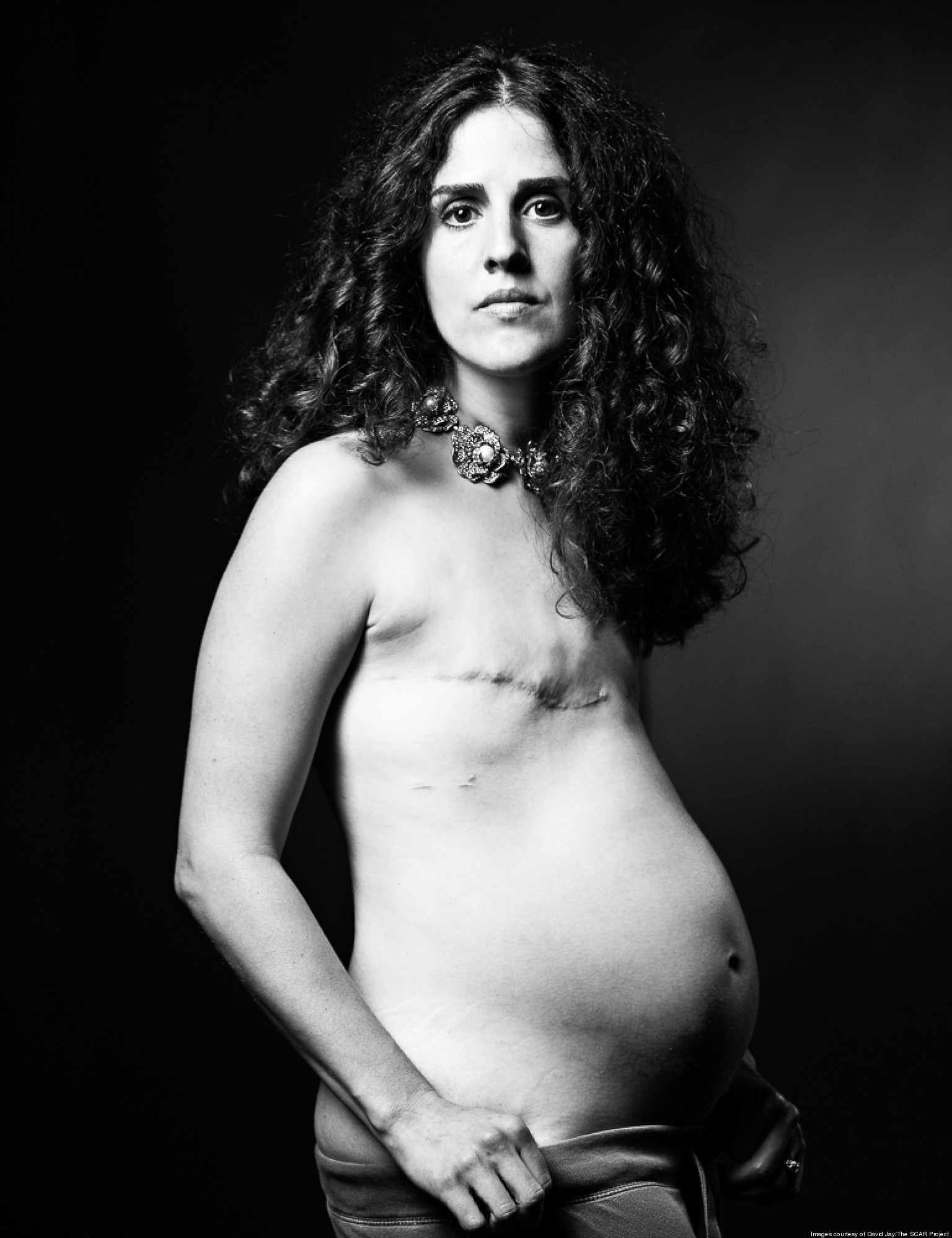 Фото отрезанная грудь 6 фотография