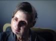 Charla Nash, Chimp Attack Victim, Appeals Lawsuit Decision