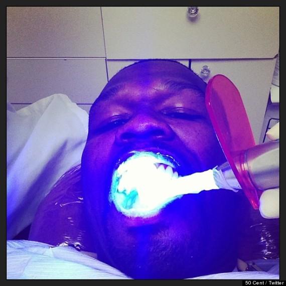 50 cent dentist